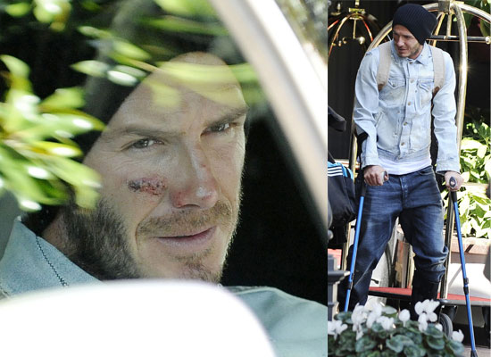 Photos of David Beckham on Crutches in Milan