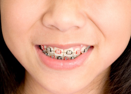 Young Children Getting Braces