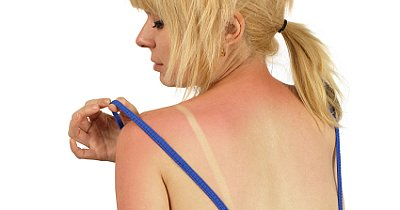 10 Ways to Soothe a Sunburn