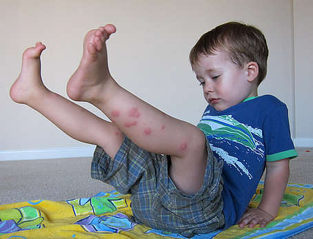 Bed Bug Bites Pictures On Children