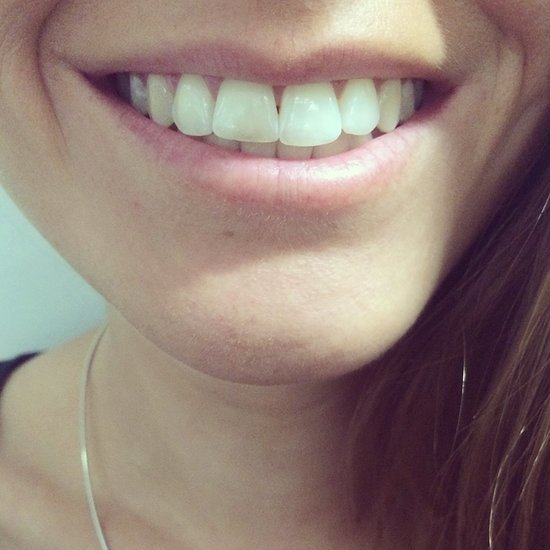 Oral-B 3D White Review: How to Get Whiter Teeth in Two Days