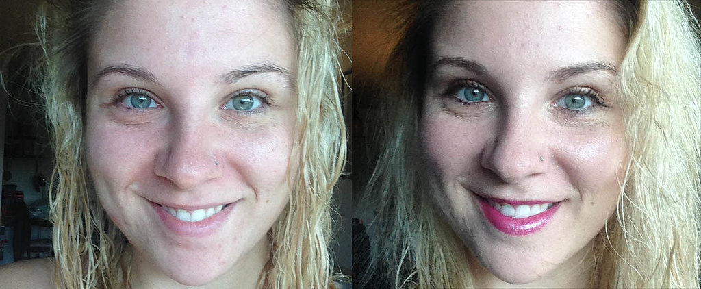 How I Cleared Adult Acne Without Prescription Pills