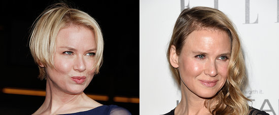 The Truth Behind Renée Zellweger's New Look Is Out