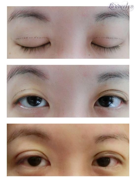 Luvverlyn: My New Eyes - Scarless Double Eyelid Creation