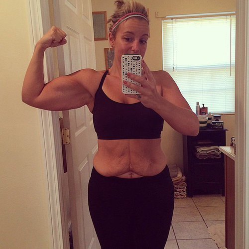 Excess Skin Photos After Weight Loss