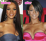 Did Rihanna Get Breast Implants?