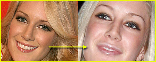 Heidi's New Lips??..