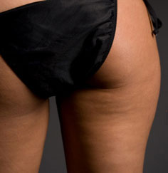Five Facts About Cellulite