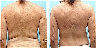 Would You Consider Back Fat Surgery?