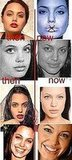 angelina jolie plastic surgeons 