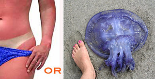 Sunburn or Jellyfish Sting: Which is Worse?