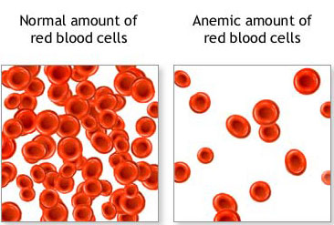 Anemia: Know the Signs