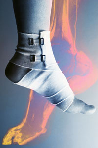 How to Avoid Sports Injuries