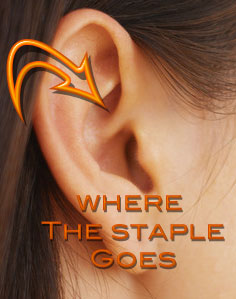 I Don't Buy It: Ear Stapling for Weight Loss