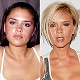 Celebrity Plastic Surgery