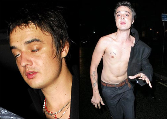 Pete Doherty Needs More Rehab