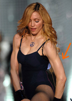 Photos of Madonna's Arms